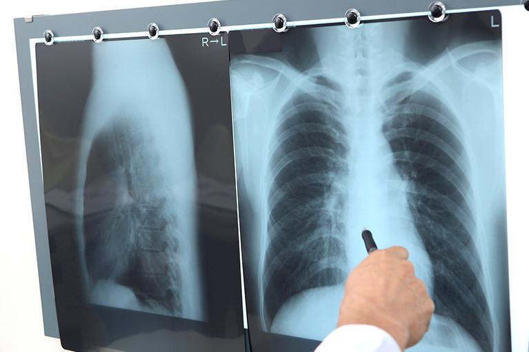 呼吸器専門医としてのスペシャリティー